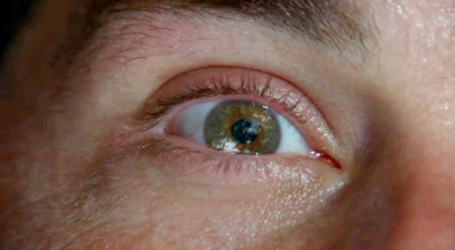 lost-eye